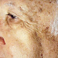 pigmentforandringar-fore-exuviance-behandling