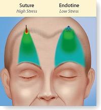 endotine-koukkukasvokuva